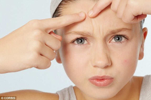 Will Blackheads Go Away Without Squeezing? – The helpful answer to you