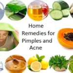 6 Best Home Remedies for Pimples and Acne